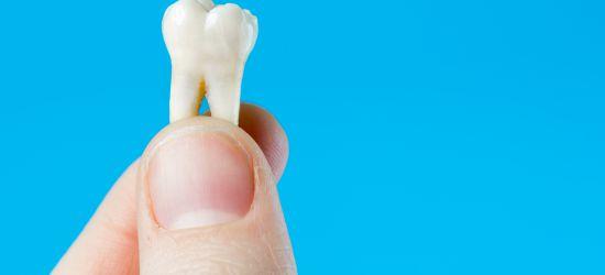 Matične ćelije iz zuba čuvanje